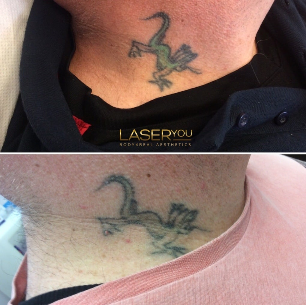 Laser Tattoo Removal Using PicoSure – LaserYou PicoSure Tattoo ...